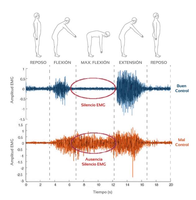 fenómeno flexion relajación en dolor lumbar