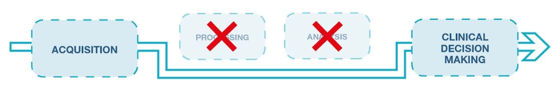 procesamiento de la señal emg mdurance