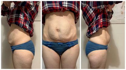 Valoración física de una diástasis abdominal Antes de tratamiento