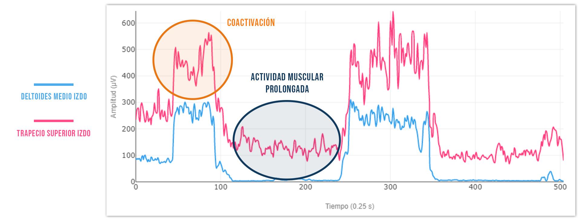 puntos gatillo coactivación muscular