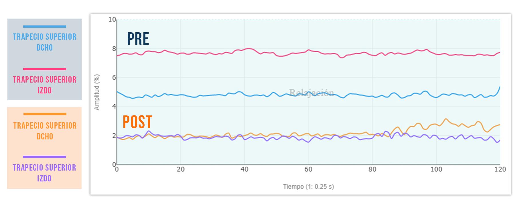 puntos gatillo (ejemplo trapecio) en el tono basal pre y post
