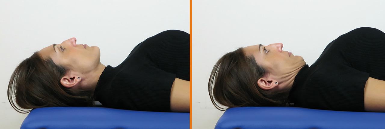 Prueba flexión craneo-cervical dolor cervical
