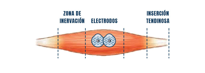 colocación de electrodos electromiografia dentro del vientre muscular