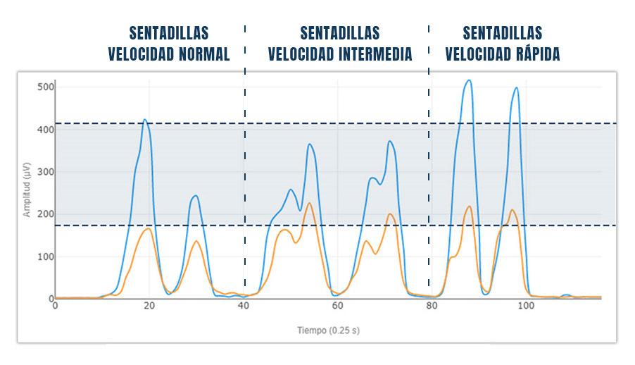 Ejemplo de variabilidad en la medición de electromiografía